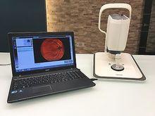 i-Optics EasyScan Retinal Imagi